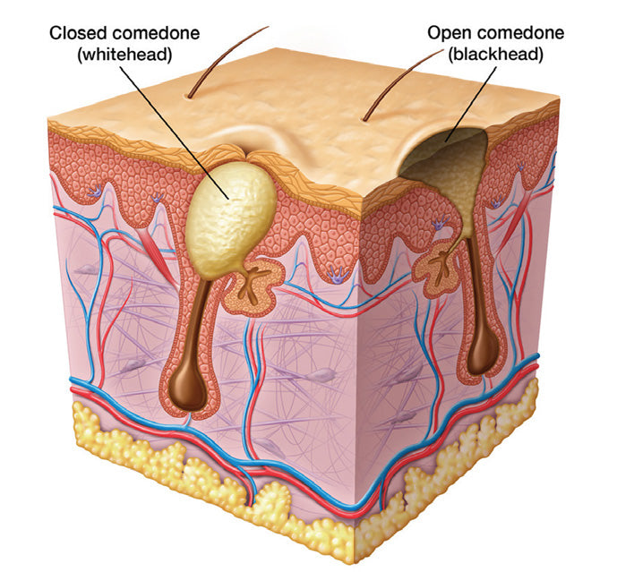 Non-inflammatory Acne - Acne and Blemishes Calgary