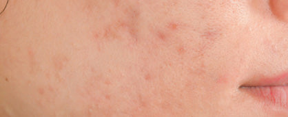 Proliferation of P.acnes bacteria - Acne and Blemishes Calgary
