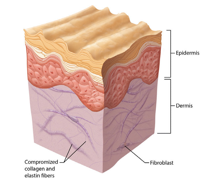 Aging skin - Wrinkles and Fine Lines Calgary