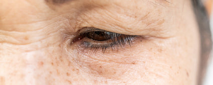 Slow Cellular Turnover - Wrinkles and Fine Lines Calgary