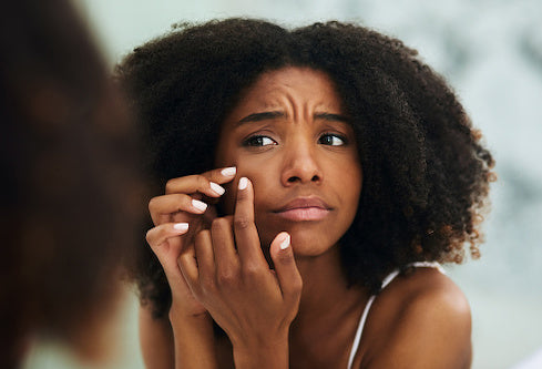 Woman checking her acne and blemishes