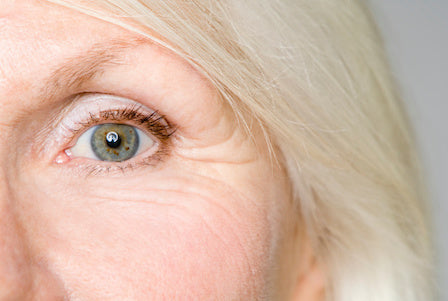 Woman's face showing wrinkles and fine lines