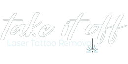 Take It Off! Laser Tattoo Removal