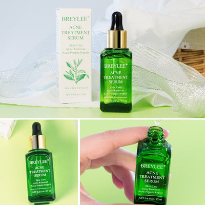 1Pc Green Tea Essence Acne Treatment Serum Facial Anti Acne Scar Removal Skin Care Whitening Pimple Remover Repair Liquid
