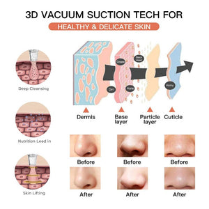 best blackhead remover uses 3D vacuum suction tech for healthy & delicate skin