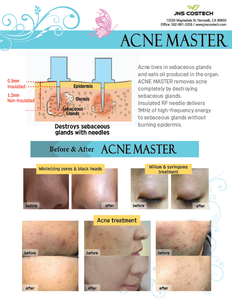 Acne Master (Acne & Pimple Treatment)