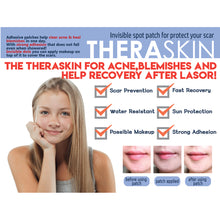 Load image into Gallery viewer, THERASKIN Acne Spot Treatment Pimple Patches (10mm/120pcs)