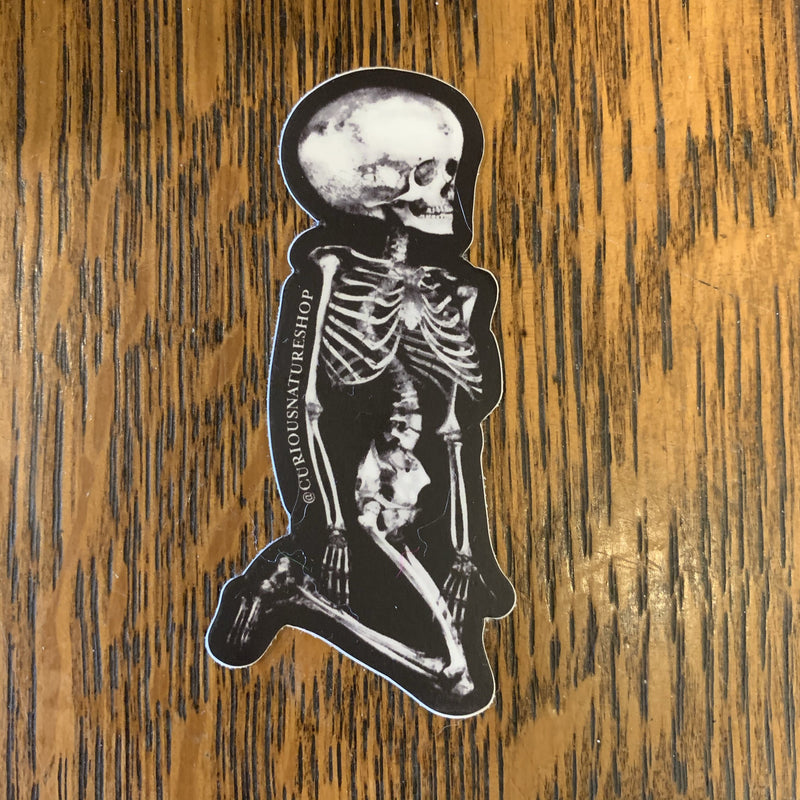 Hydrocephalic Skeleton Sticker - Curious Nature