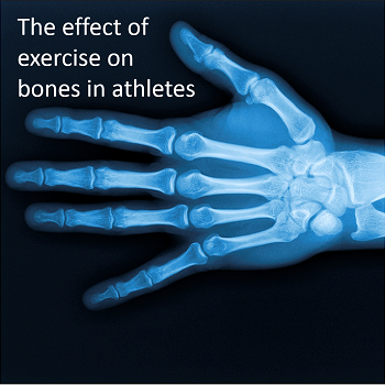 Exercise, Bone Health, and the Athlete