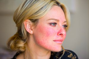 Celebrity makeup artist Sarah Jagger takes part in a Experience My Rosacea event in London, 20 April 2016.