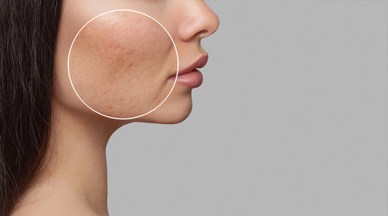 Can Silicone Gel Help Treat Acne Scars?