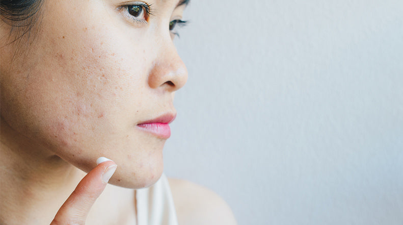 4 Strategies for Reducing Atrophic Scars