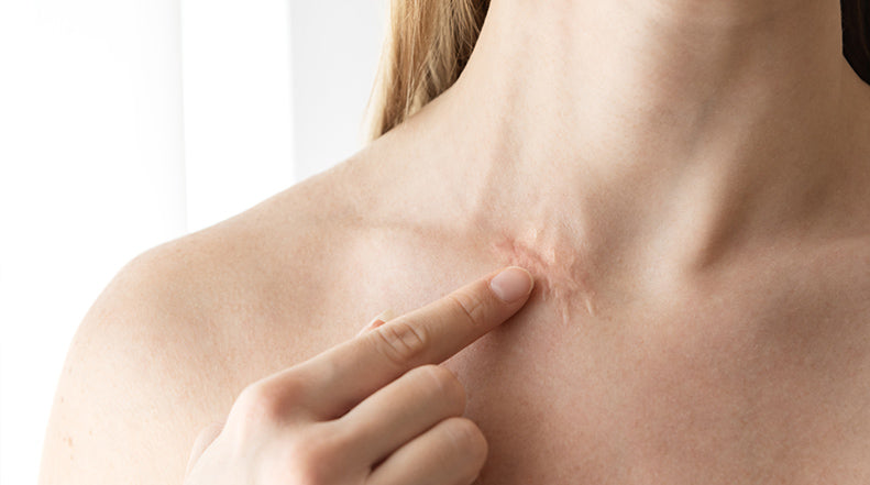 Which Part of Your Body Scars the Worst?