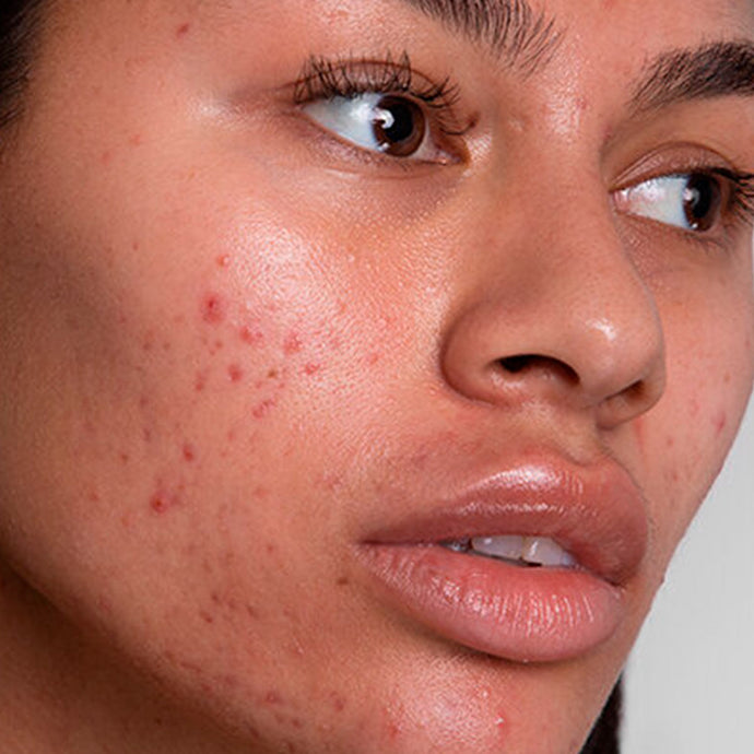 HYPERPIGMENTATION: WHY IT HAPPENS AND HOW TO TREAT IT
