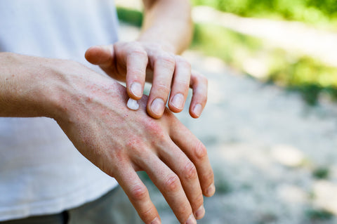 Male Rubbing Magical Lotion Into Hand