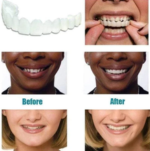 Load image into Gallery viewer, 【FREE GIFT🔥】AD™ PROFESSIONAL ORTHODONTIC BRACES