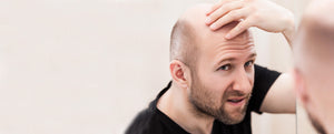 6 Home Remedies a Man Should Try to Get Rid of Baldness