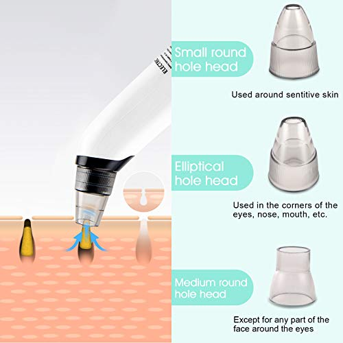 Blackhead Pore Vacuum Cleaner Remover,Electric Blackhead Vacuum Pore Blackhead