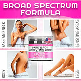 Dark Spot Remоver Cream for Intimate Areas, Body, Face, Bikini and Sensitive Areas