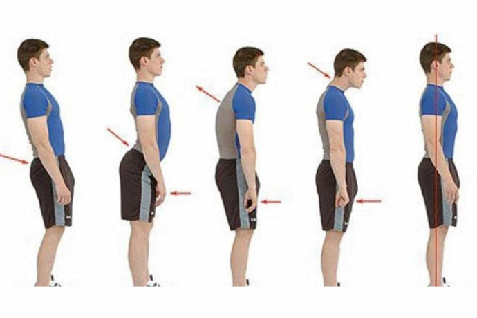 Your Ultimate Guide to Posture Management