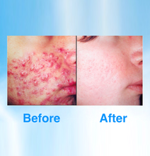 Load image into Gallery viewer, Acne Treatment - BEST SELLER