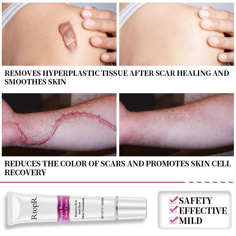 Scar Remover Cream  - For VIP Members Only