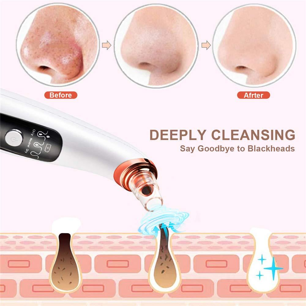 Blackhead Remover Pore Vacuum - Jemyda Rechargeable Black Heads Removal Tool with 6 Sucking Probes