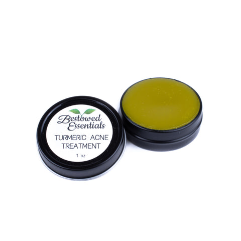 Bestowed Essentials Turmeric Acne Treatment Balm