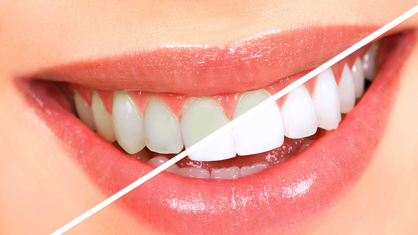Teeth whitening. Bleach. Smile. White teeth