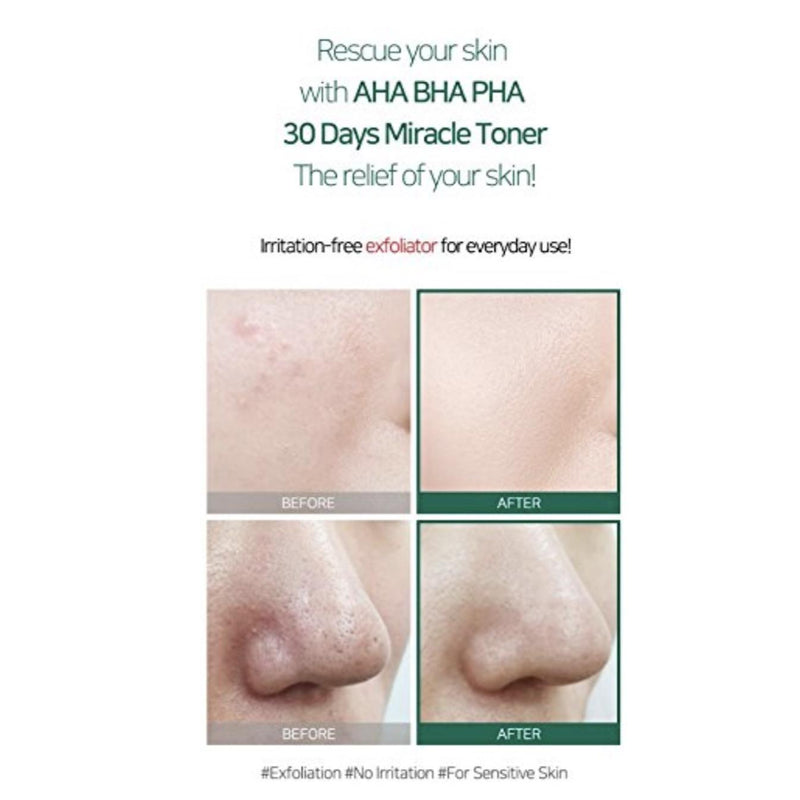 Some By Mi AHA-BHA-PHA 30 Days Miracle Toner kooriv toonik