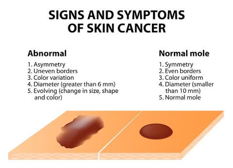 Skin cancer symptoms what to look for