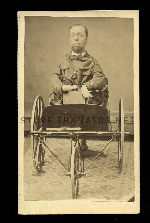 Crippled Man in Custom Cart! 1870s CDV Photo