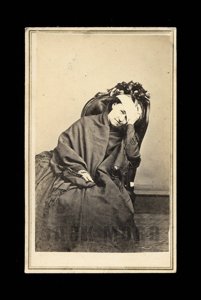 Unusual 1860s CDV Medical Photo - Woman with Bandaged Head! ~ Newton New Jersey