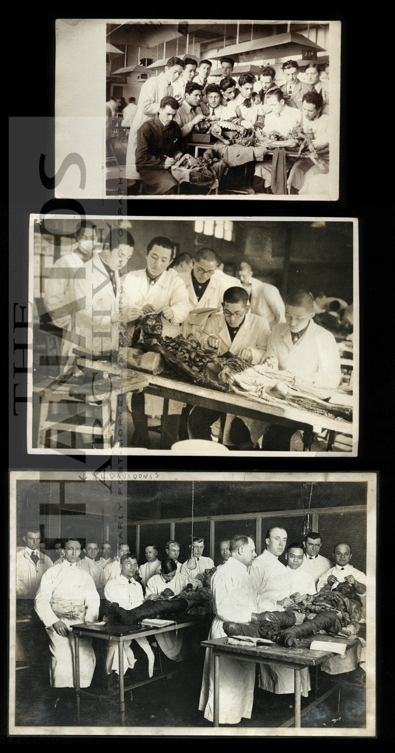 Lot of Macabre Autopsy or Dissecting Class Photos incl BABY - Vintage Medical