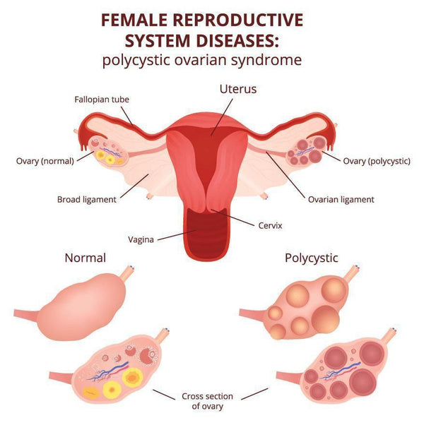 MAJOR CAUSES OF FEMALE INFERTILITY - Supplemena