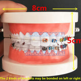 Dental Orthodontic Treatment Model With Ortho Metal Bracket Arch Wire Buccal Tube Ligature Ties teeth model Tooth model