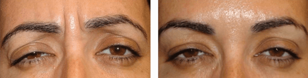 Hyaluronic Acid Filler in Frown Lines (Glabellar) with Hyaluron Pen Wrinkles Pout And Pretty