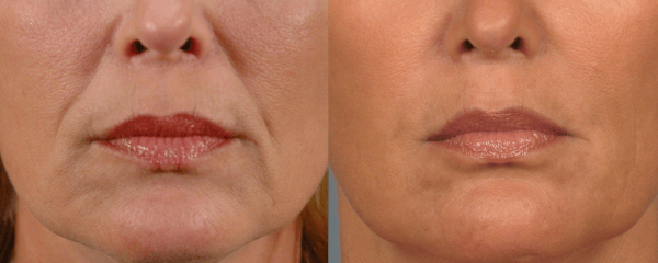Hyaluronic Acid Filler in Nasolabial Folds with Hyaluron Pen Wrinkles Pout And Pretty