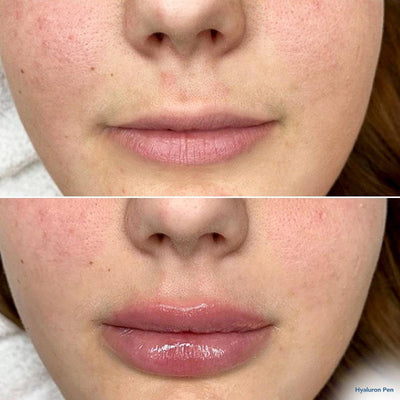 Hyaluronic Acid Lip Filler with Hyaluron Pen Lips Pout And Pretty