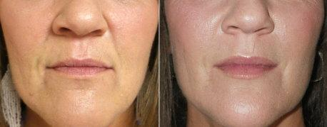 Touch Up - Nasolabial Folds Wrinkles Pout And Pretty