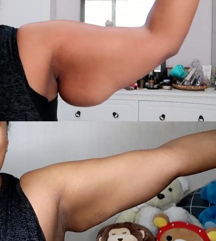 arm weight loss