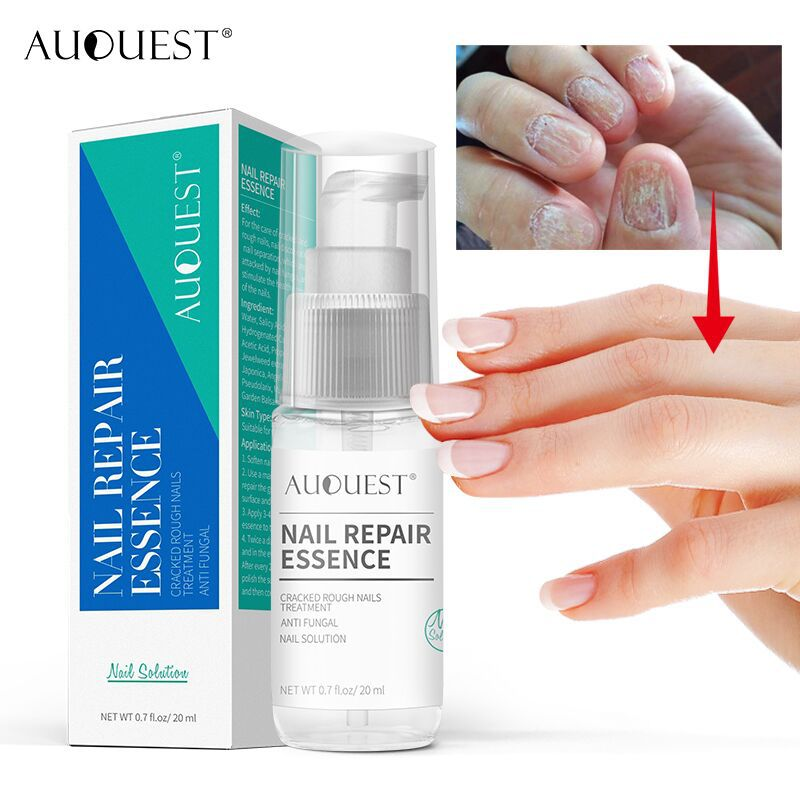 AUOUEST Nail Treatment Essence | Nail Fungus Treatment Gel Spray