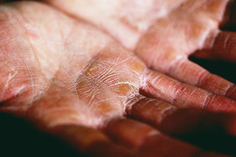 Low humidity levels cause dry, itchy skin.