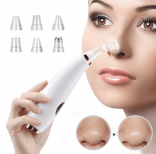 Load image into Gallery viewer, Facial Blackhead Vacuum Remover 🔥 LIMITED OFFER🔥