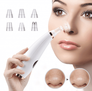 Facial Blackhead Vacuum Remover 🔥 LIMITED OFFER🔥