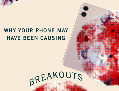Why Your Phone May Have Been Causing Breakouts