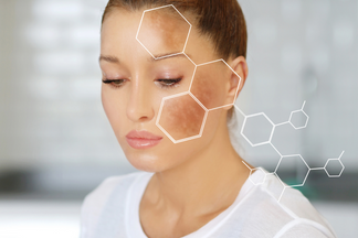 Fernblock® demonstrates its action against melasma