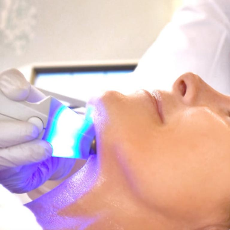 Laser Skin Tightening & Firming (Exilis) per session