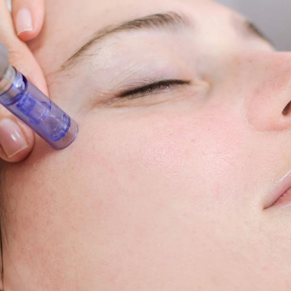 Microneedling Per Session