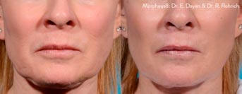 Morpheus8 Microneedling Fractional Treatment